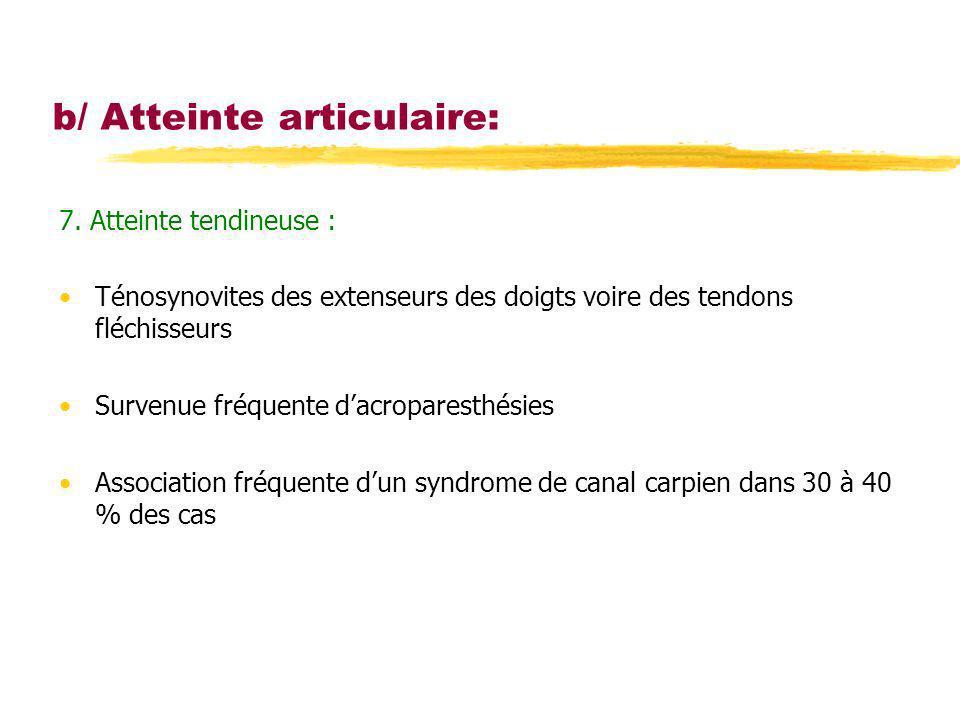 b/ Atteinte articulaire: 7. Atteinte tendineuse : Ténosynovites des extenseurs des doigts voire des tendons fléchisseurs Survenue fréquente dacropares