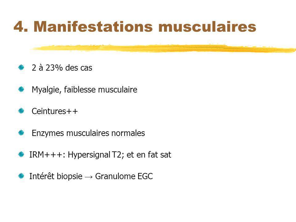 4. Manifestations musculaires 2 à 23% des cas Myalgie, faiblesse musculaire Ceintures++ Enzymes musculaires normales IRM+++: Hypersignal T2; et en fat