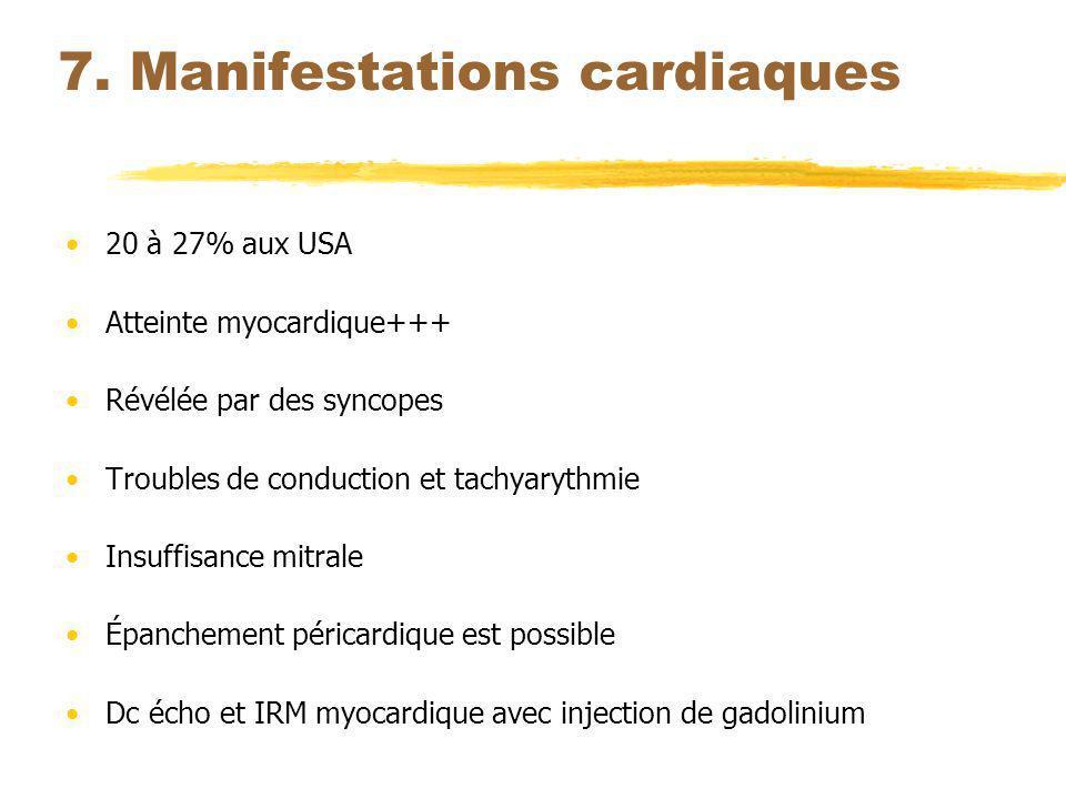 7. Manifestations cardiaques 20 à 27% aux USA Atteinte myocardique+++ Révélée par des syncopes Troubles de conduction et tachyarythmie Insuffisance mi