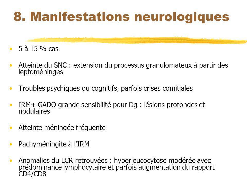 8. Manifestations neurologiques 5 à 15 % cas Atteinte du SNC : extension du processus granulomateux à partir des leptoméninges Troubles psychiques ou