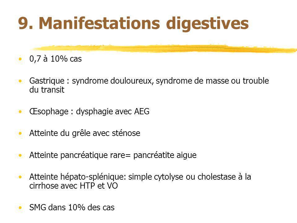 9. Manifestations digestives 0,7 à 10% cas Gastrique : syndrome douloureux, syndrome de masse ou trouble du transit Œsophage : dysphagie avec AEG Atte