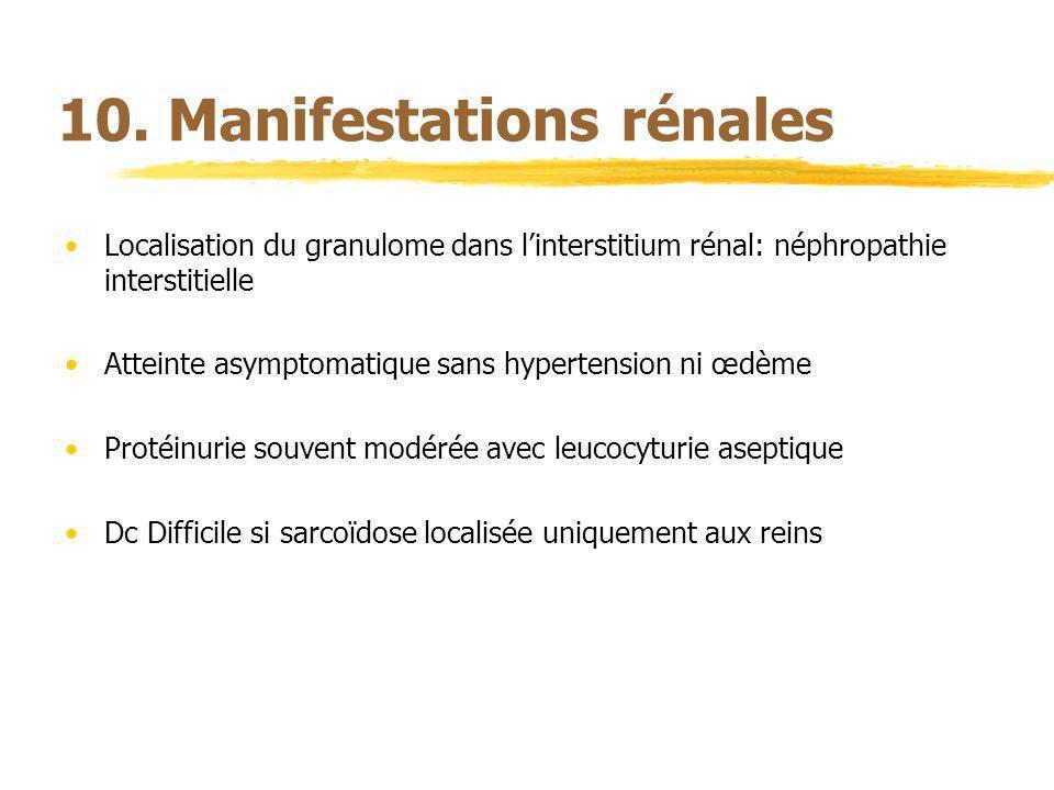 10. Manifestations rénales Localisation du granulome dans linterstitium rénal: néphropathie interstitielle Atteinte asymptomatique sans hypertension n