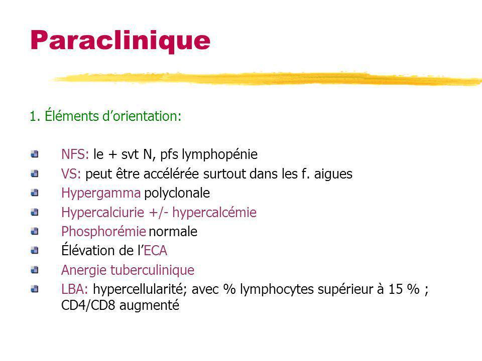 Paraclinique 1. Éléments dorientation: NFS: le + svt N, pfs lymphopénie VS: peut être accélérée surtout dans les f. aigues Hypergamma polyclonale Hype