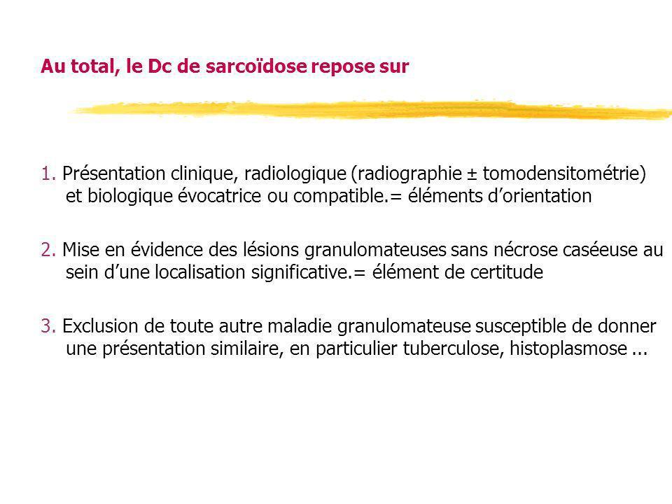Au total, le Dc de sarcoïdose repose sur 1. Présentation clinique, radiologique (radiographie ± tomodensitométrie) et biologique évocatrice ou compati