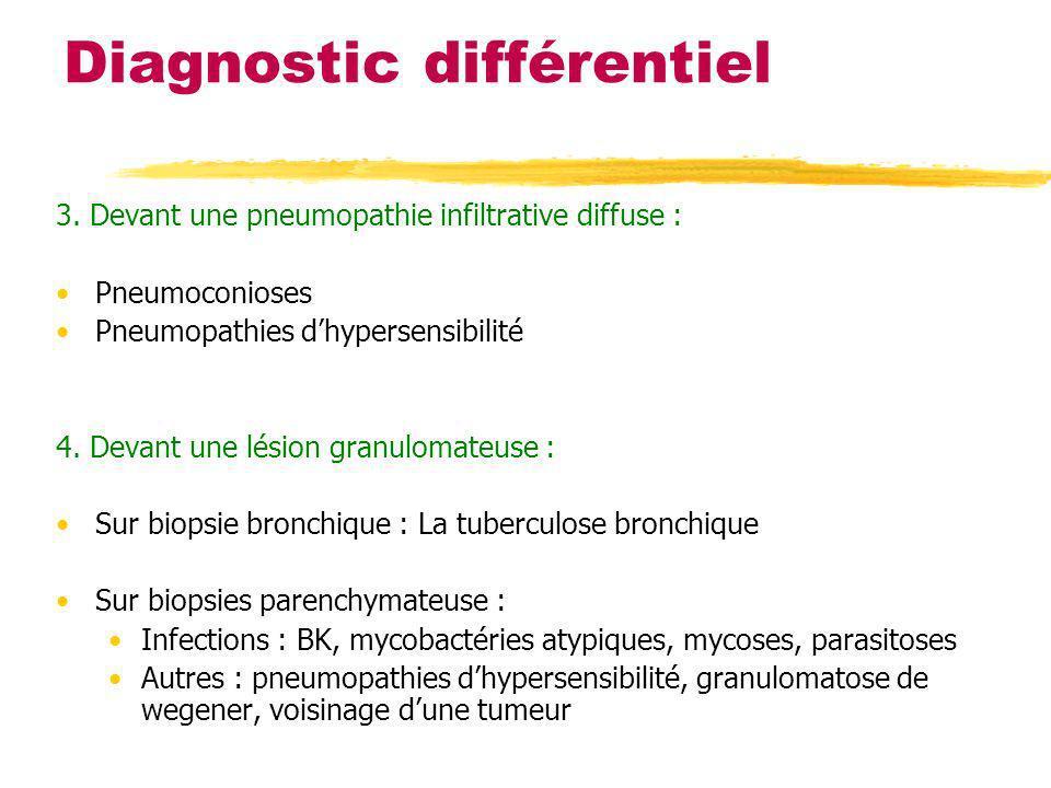 Diagnostic différentiel 3. Devant une pneumopathie infiltrative diffuse : Pneumoconioses Pneumopathies dhypersensibilité 4. Devant une lésion granulom