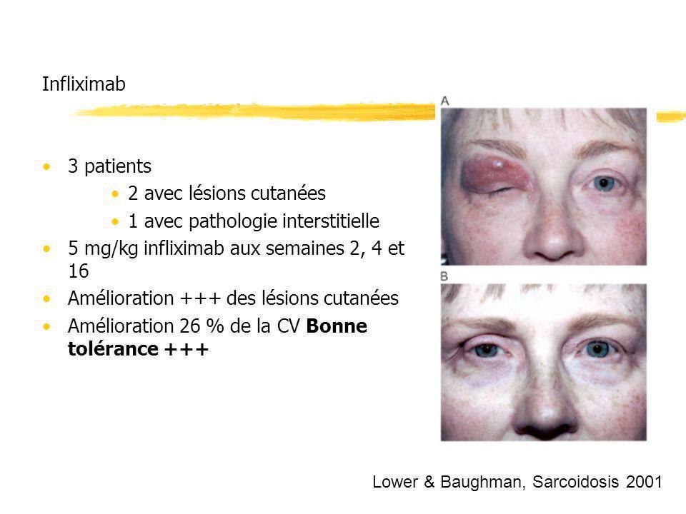 Infliximab 3 patients 2 avec lésions cutanées 1 avec pathologie interstitielle 5 mg/kg infliximab aux semaines 2, 4 et 16 Amélioration +++ des lésions