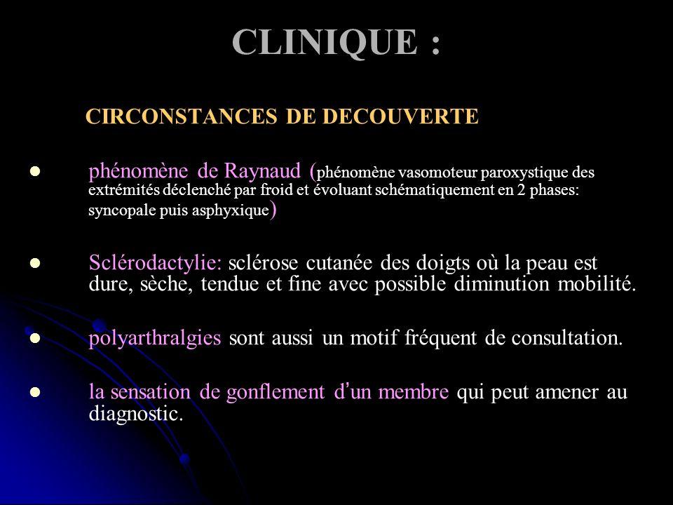 CLINIQUE : CIRCONSTANCES DE DECOUVERTE phénomène de Raynaud ( phénomène vasomoteur paroxystique des extrémités déclenché par froid et évoluant schémat