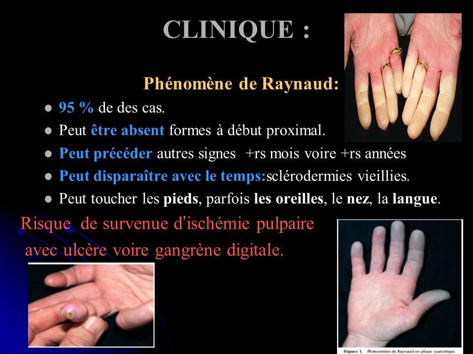 CLINIQUE : Phénomène de Raynaud: 95 % de des cas. Peut être absent formes à début proximal. Peut précéder autres signes +rs mois voire +rs années Peut
