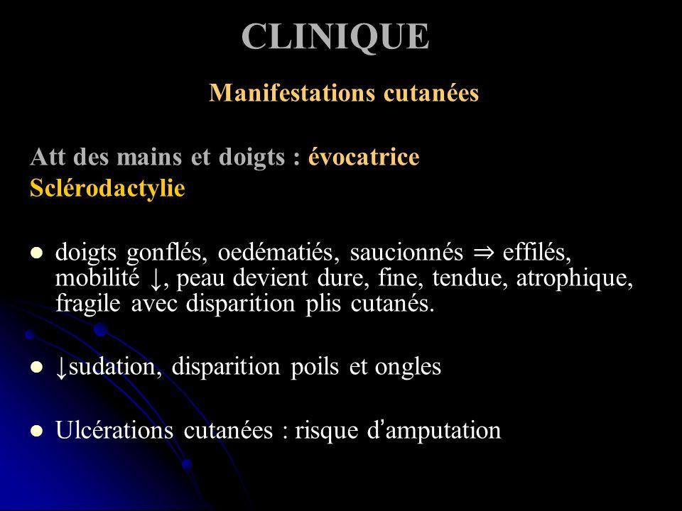 CLINIQUE Manifestations cutanées Att des mains et doigts : évocatrice Sclérodactylie doigts gonflés, oedématiés, saucionnés effilés, mobilité, peau de