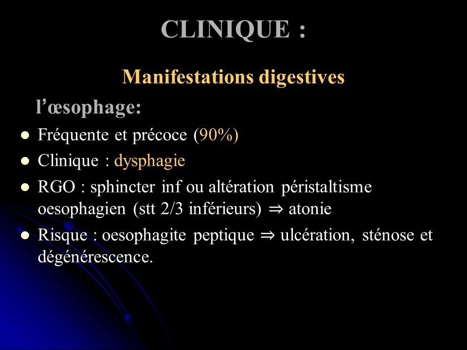 CLINIQUE : Manifestations digestives lœsophage: Fréquente et précoce (90%) Clinique : dysphagie RGO : sphincter inf ou altération péristaltisme oesophagien (stt 2/3 inférieurs) atonie Risque : oesophagite peptique ulcération, sténose et dégénérescence.