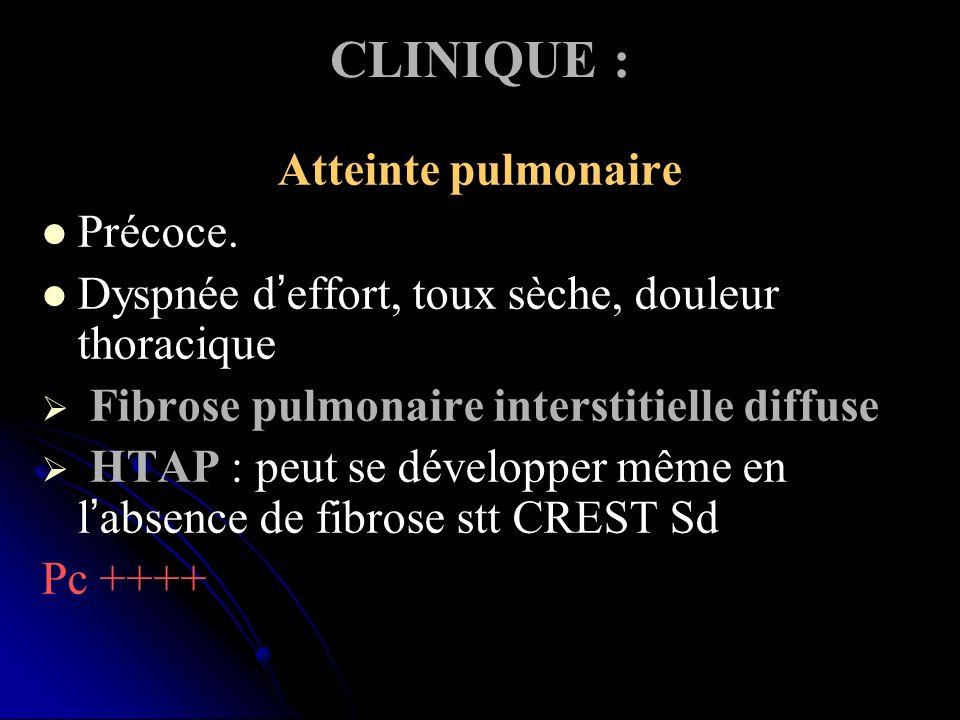 CLINIQUE : Atteinte pulmonaire Précoce. Dyspnée deffort, toux sèche, douleur thoracique Fibrose pulmonaire interstitielle diffuse HTAP : peut se dével