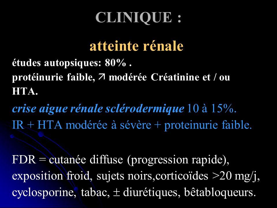 CLINIQUE : atteinte rénale études autopsiques: 80%. protéinurie faible, modérée Créatinine et / ou HTA. crise aigue rénale sclérodermique 10 à 15%. IR
