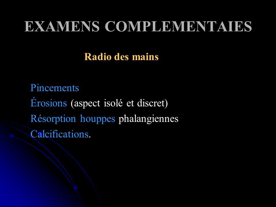 EXAMENS COMPLEMENTAIES Radio des mains Pincements Érosions (aspect isolé et discret) Résorption houppes phalangiennes Calcifications.