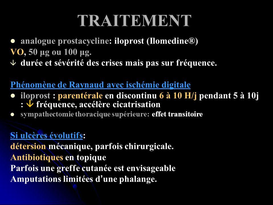 TRAITEMENT analogue prostacycline: iloprost (Ilomedine®) VO, 50 μg ou 100 μg. durée et sévérité des crises mais pas sur fréquence. Phénomène de Raynau