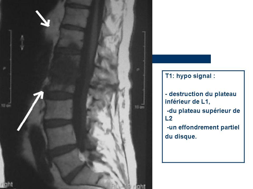 T1: hypo signal : - destruction du plateau inférieur de L1, -du plateau supérieur de L2 -un effondrement partiel du disque.