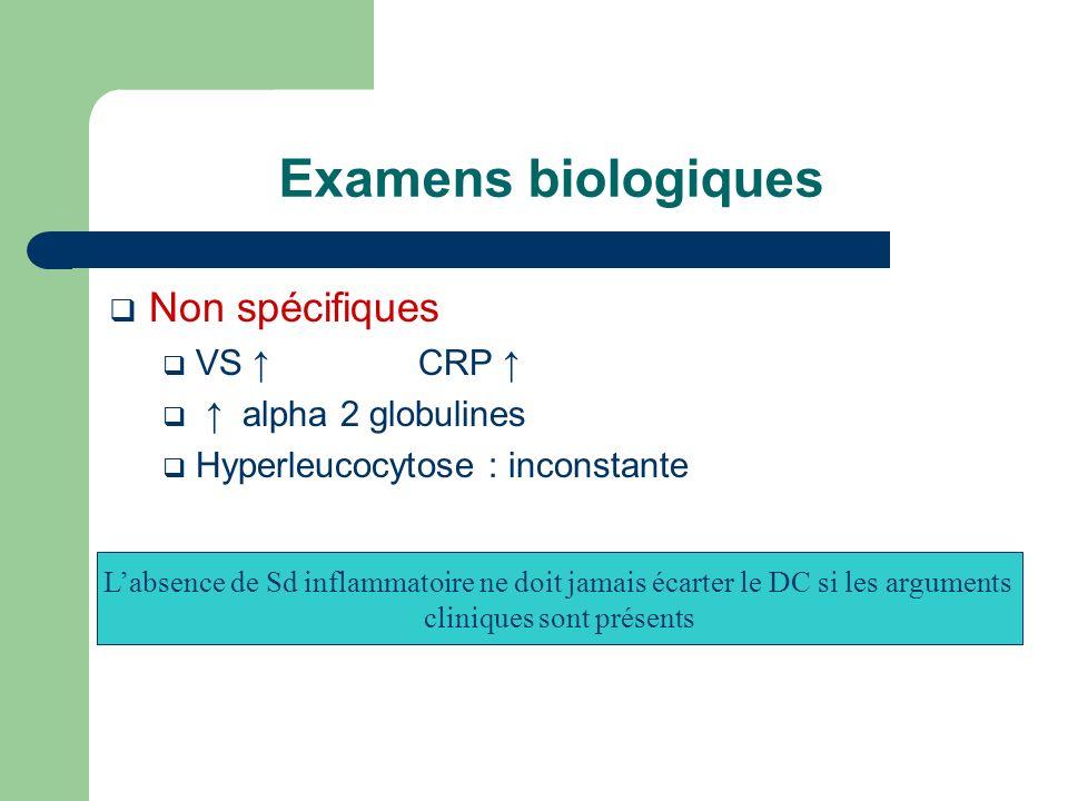 Examens biologiques Non spécifiques VS CRP alpha 2 globulines Hyperleucocytose : inconstante Labsence de Sd inflammatoire ne doit jamais écarter le DC