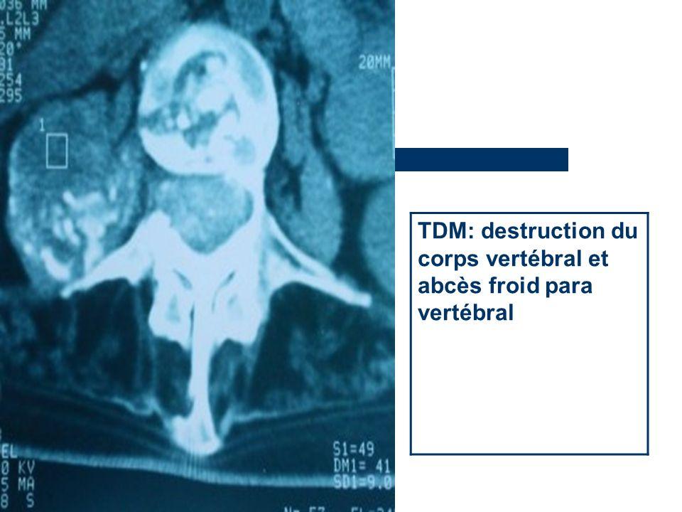 TDM: destruction du corps vertébral et abcès froid para vertébral