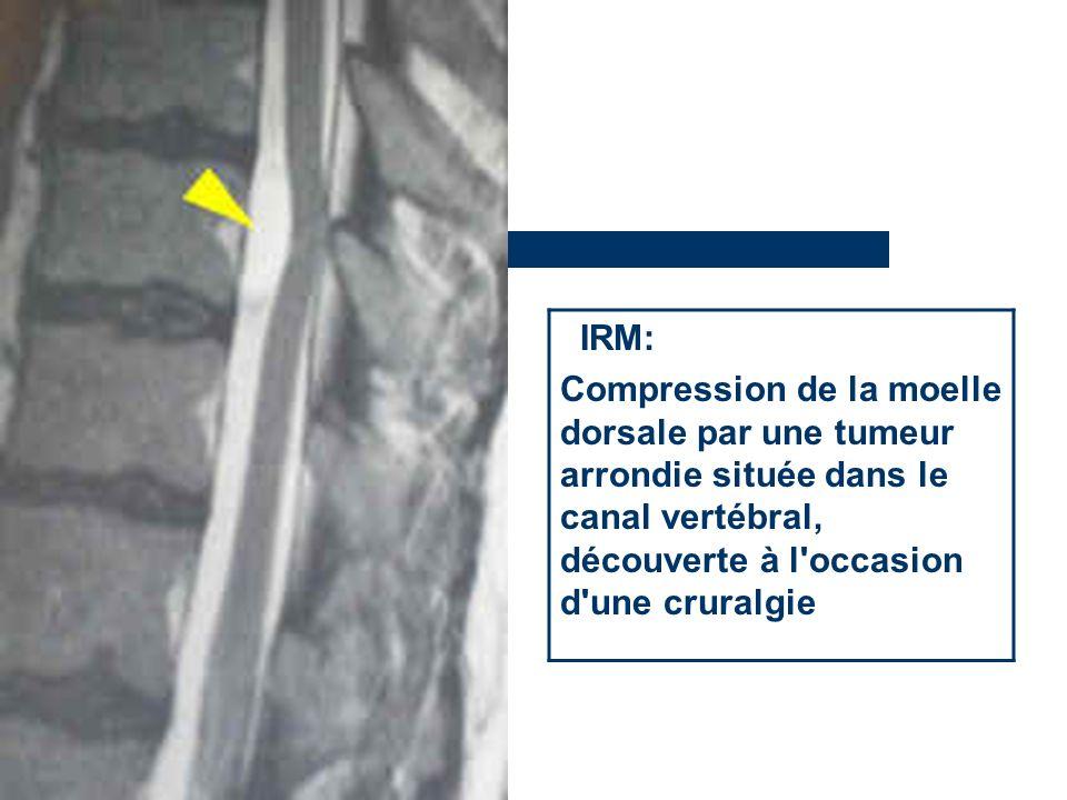 IRM: Compression de la moelle dorsale par une tumeur arrondie située dans le canal vertébral, découverte à l'occasion d'une cruralgie