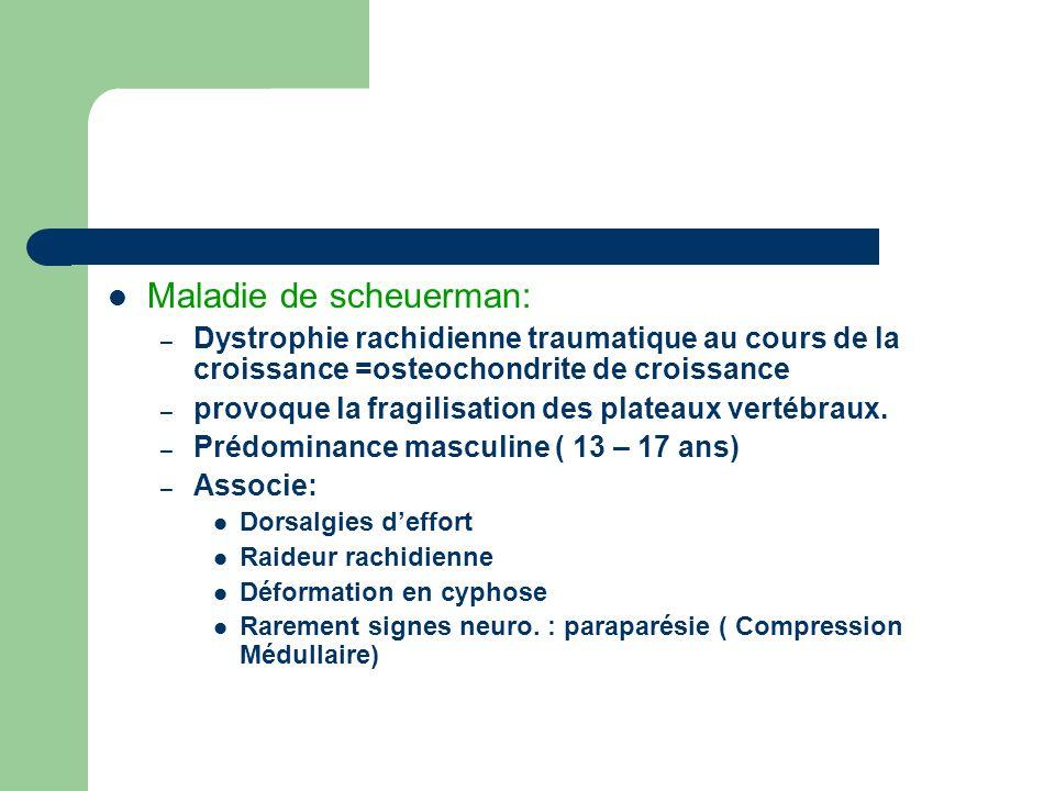 Maladie de scheuerman: – Dystrophie rachidienne traumatique au cours de la croissance =osteochondrite de croissance – provoque la fragilisation des pl