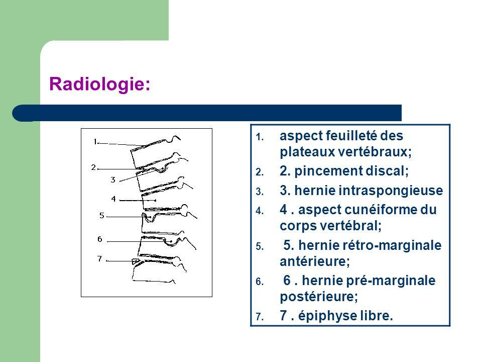 Radiologie: 1. aspect feuilleté des plateaux vertébraux; 2. 2. pincement discal; 3. 3. hernie intraspongieuse 4. 4. aspect cunéiforme du corps vertébr
