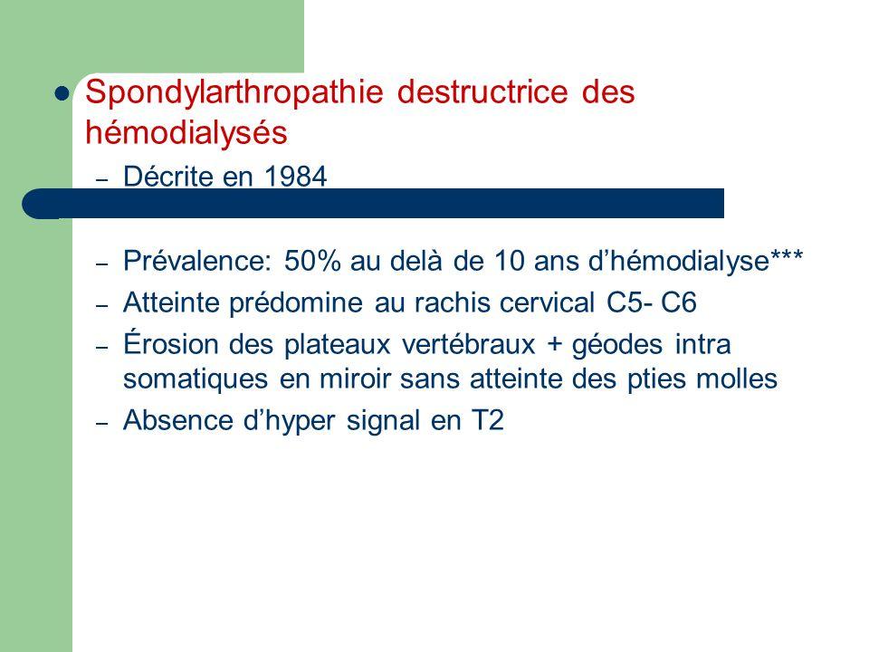 Spondylarthropathie destructrice des hémodialysés – Décrite en 1984 – Prévalence: 50% au delà de 10 ans dhémodialyse*** – Atteinte prédomine au rachis