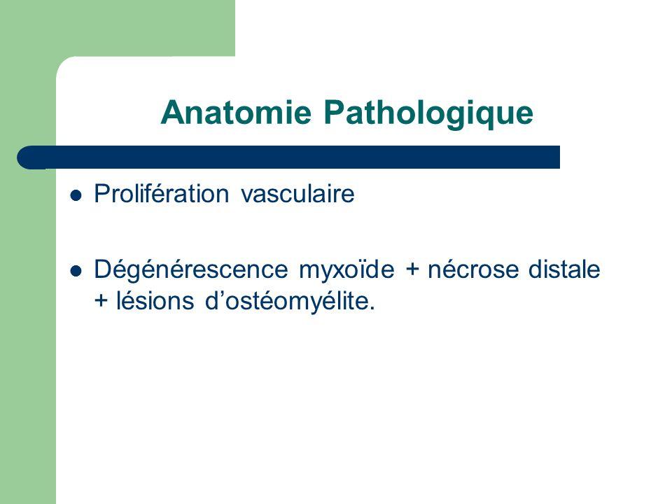 Anatomie Pathologique Prolifération vasculaire Dégénérescence myxoïde + nécrose distale + lésions dostéomyélite.