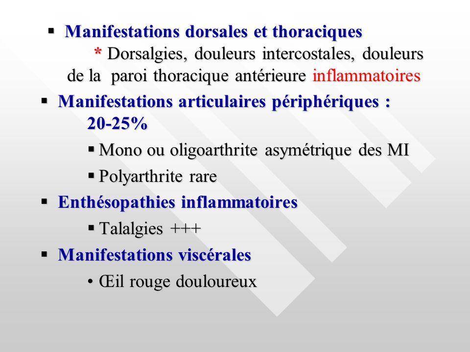 Manifestations dorsales et thoraciques * Dorsalgies, douleurs intercostales, douleurs de la paroi thoracique antérieure inflammatoires Manifestations