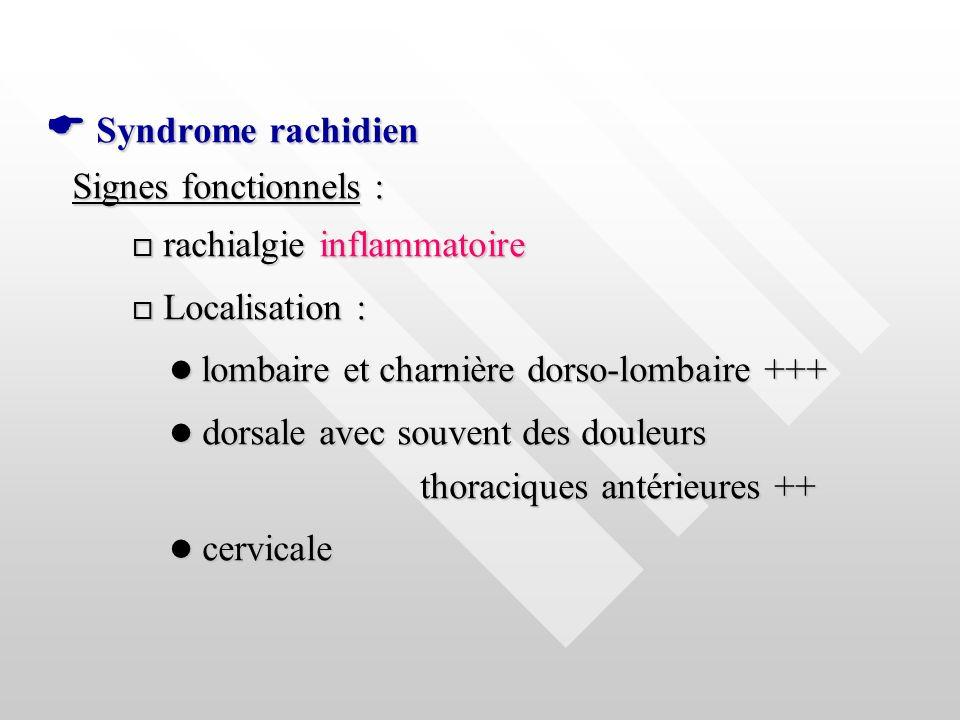 Syndrome rachidien Syndrome rachidien Signes fonctionnels : rachialgie inflammatoire rachialgie inflammatoire Localisation : Localisation : lombaire e