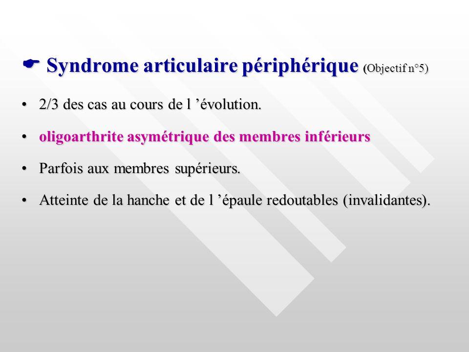 Syndrome articulaire périphérique (Objectif n°5) Syndrome articulaire périphérique (Objectif n°5) 2/3 des cas au cours de l évolution.2/3 des cas au c