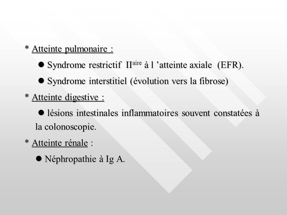 * Atteinte pulmonaire : Syndrome restrictif II aire à l atteinte axiale (EFR). Syndrome restrictif II aire à l atteinte axiale (EFR). Syndrome interst