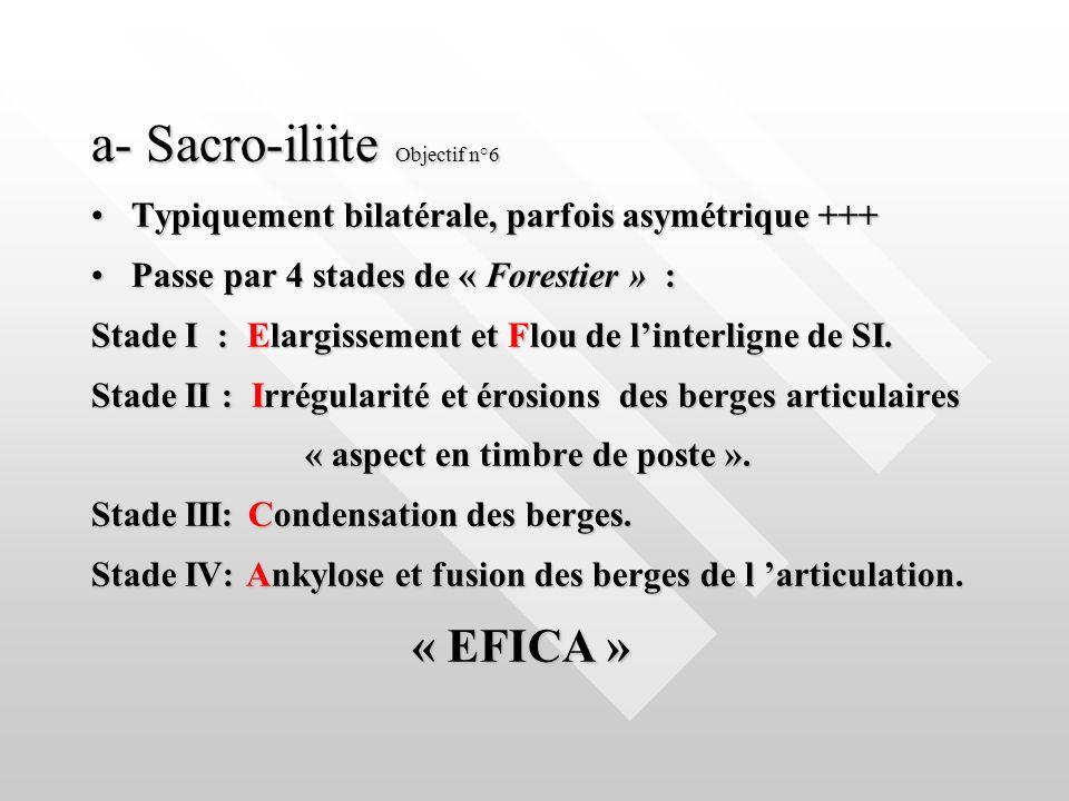 a- Sacro-iliite Objectif n°6 Typiquement bilatérale, parfois asymétrique +++Typiquement bilatérale, parfois asymétrique +++ Passe par 4 stades de « Fo