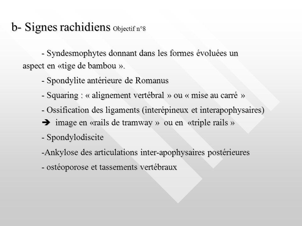 b- Signes rachidiens Objectif n°8 - Syndesmophytes donnant dans les formes évoluées un aspect en «tige de bambou ». - Spondylite antérieure de Romanus