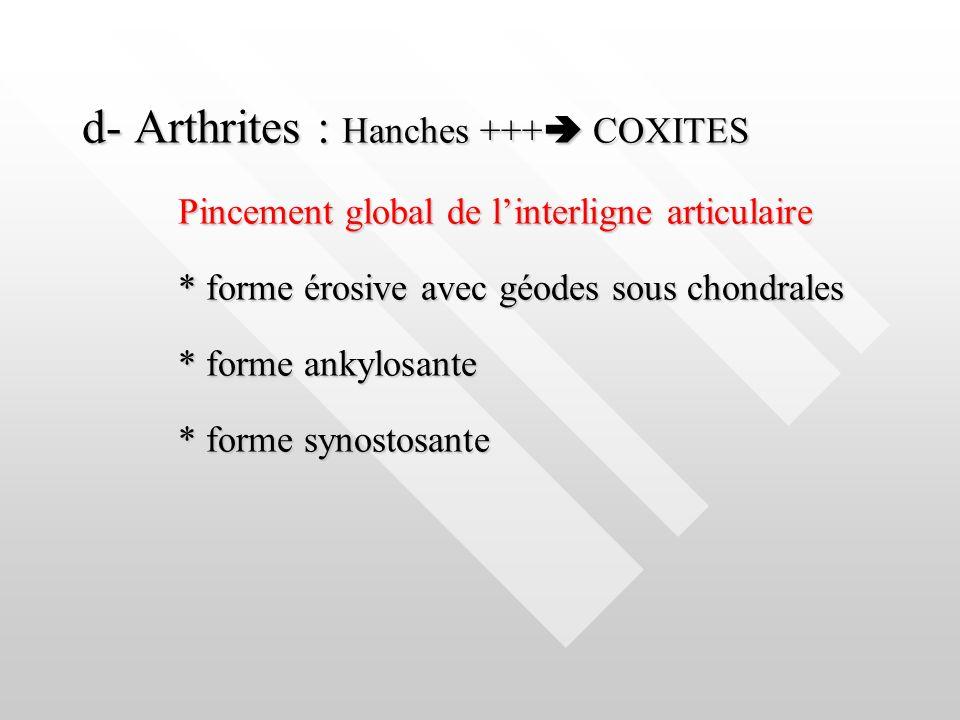 d- Arthrites : Hanches +++ COXITES Pincement global de linterligne articulaire * forme érosive avec géodes sous chondrales * forme ankylosante * forme