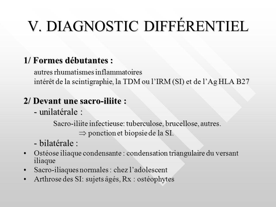V. DIAGNOSTIC DIFFÉRENTIEL 1/ Formes débutantes : autres rhumatismes inflammatoires intérêt de la scintigraphie, la TDM ou lIRM (SI) et de lAg HLA B27