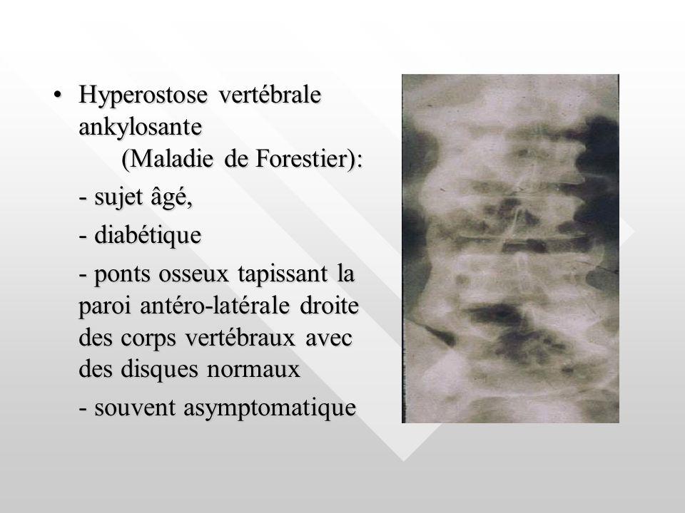 Hyperostose vertébrale ankylosante (Maladie de Forestier):Hyperostose vertébrale ankylosante (Maladie de Forestier): - sujet âgé, - diabétique - ponts