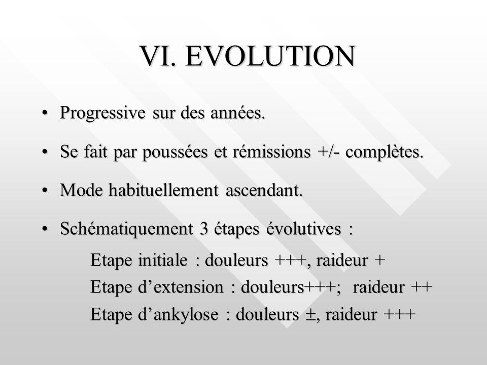 VI. EVOLUTION Progressive sur des années.Progressive sur des années. Se fait par poussées et rémissions +/- complètes.Se fait par poussées et rémissio