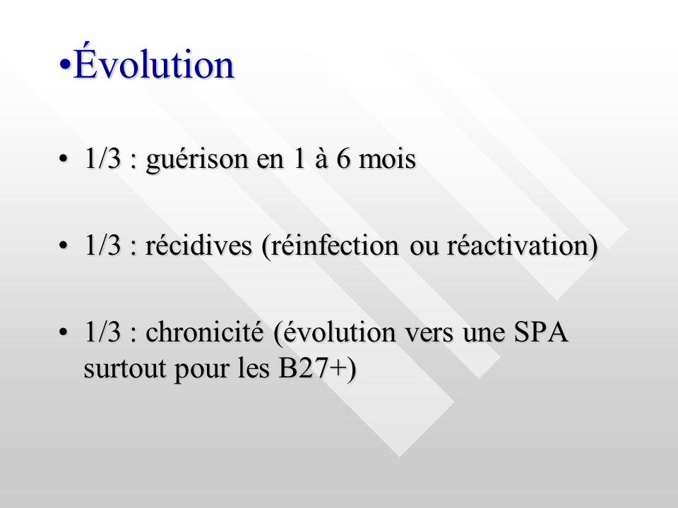ÉvolutionÉvolution 1/3 : guérison en 1 à 6 mois1/3 : guérison en 1 à 6 mois 1/3 : récidives (réinfection ou réactivation)1/3 : récidives (réinfection