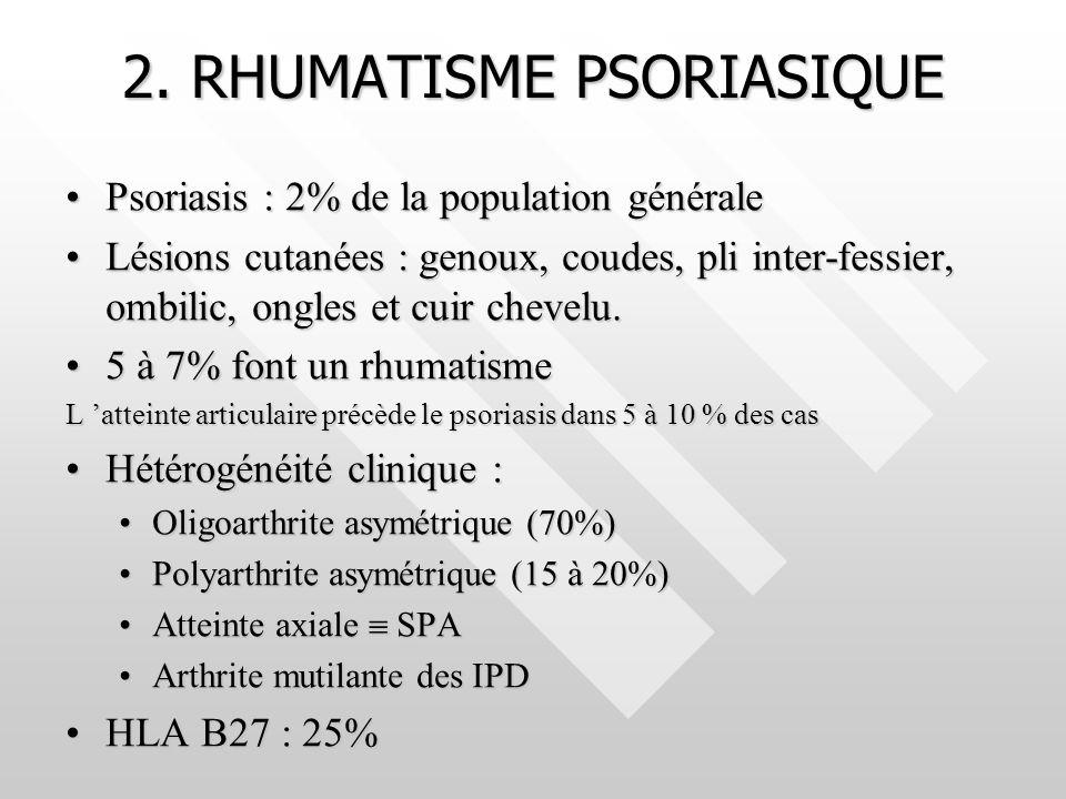 2. RHUMATISME PSORIASIQUE Psoriasis : 2% de la population généralePsoriasis : 2% de la population générale Lésions cutanées : genoux, coudes, pli inte