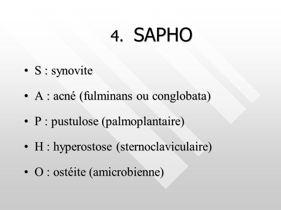 4. SAPHO S : synoviteS : synovite A : acné (fulminans ou conglobata)A : acné (fulminans ou conglobata) P : pustulose (palmoplantaire)P : pustulose (pa