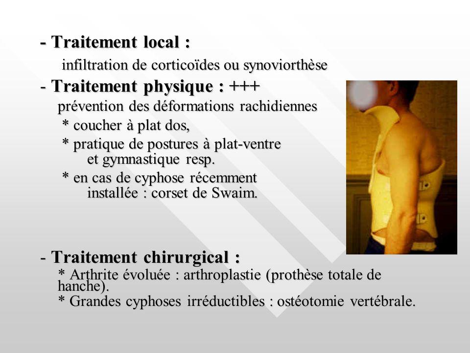 - Traitement local : infiltration de corticoïdes ou synoviorthèse infiltration de corticoïdes ou synoviorthèse - Traitement physique : +++ prévention