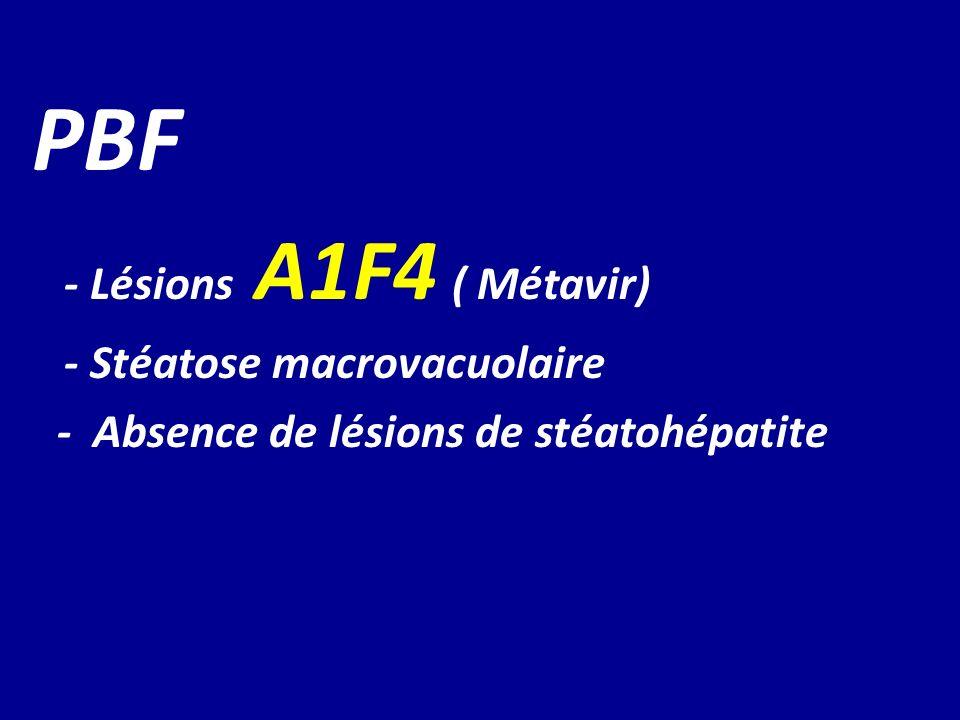 PBF - Lésions A1F4 ( Métavir) - Stéatose macrovacuolaire - Absence de lésions de stéatohépatite