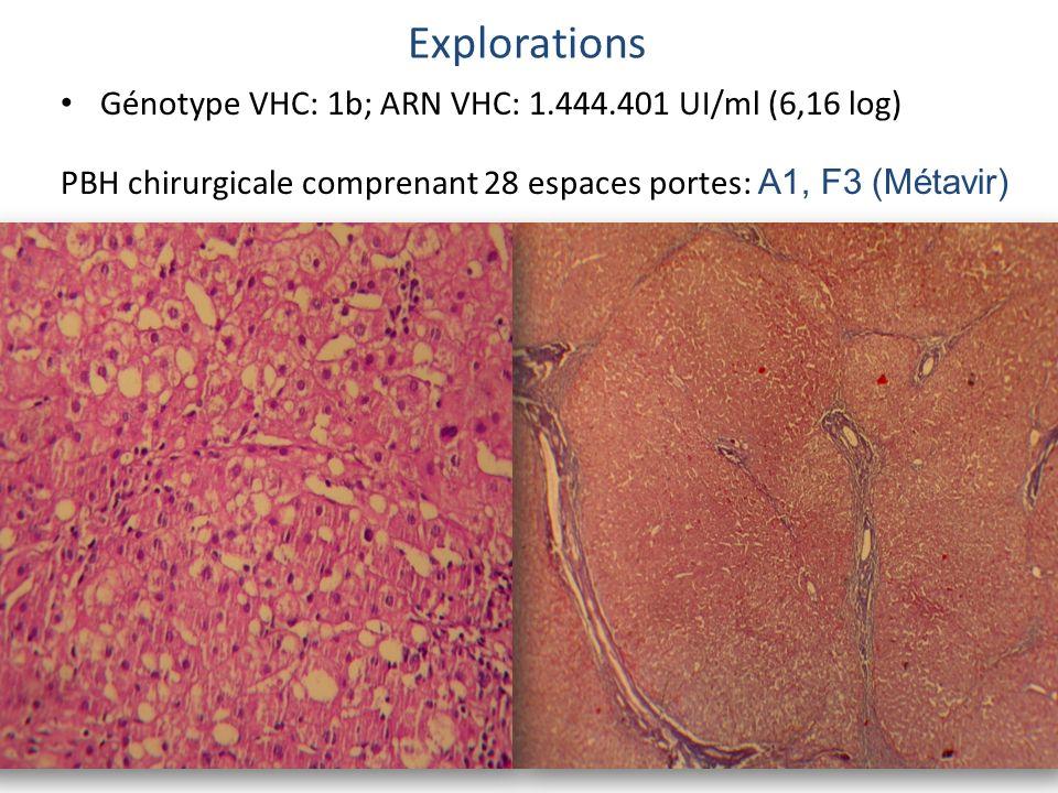 Génotype VHC: 1b; ARN VHC: 1.444.401 UI/ml (6,16 log) PBH chirurgicale comprenant 28 espaces portes: A1, F3 (Métavir) Explorations