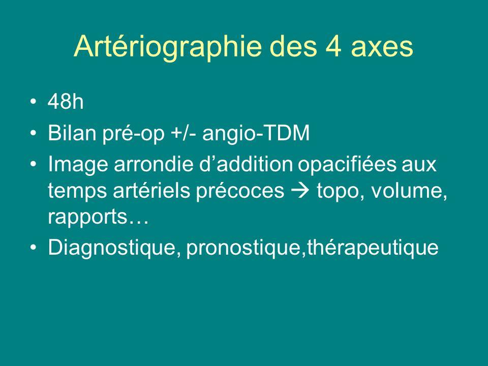 Artériographie des 4 axes 48h Bilan pré-op +/- angio-TDM Image arrondie daddition opacifiées aux temps artériels précoces topo, volume, rapports… Diag