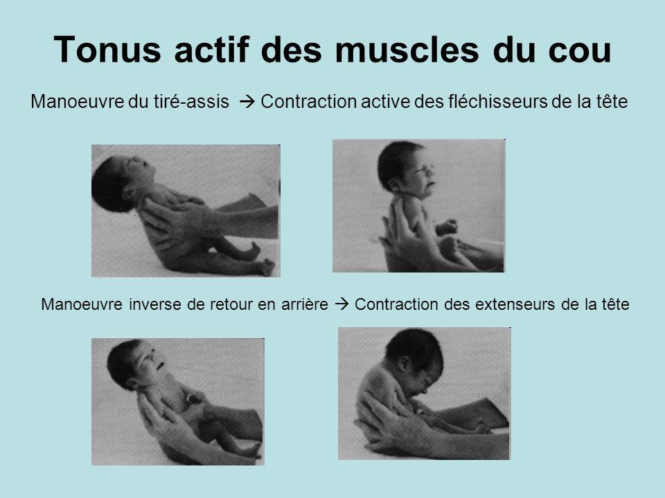 Tonus actif des muscles du cou Manoeuvre du tiré-assis Contraction active des fléchisseurs de la tête Manoeuvre inverse de retour en arrière Contracti