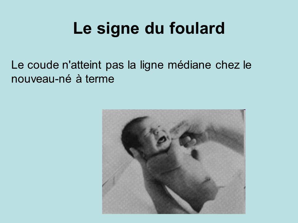 Le signe du foulard Le coude n'atteint pas la ligne médiane chez le nouveau-né à terme