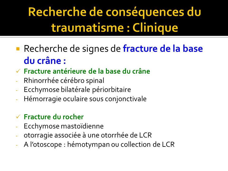 Recherche de signes de fracture de la base du crâne : Fracture antérieure de la base du crâne - Rhinorrhée cérébro spinal - Ecchymose bilatérale pério