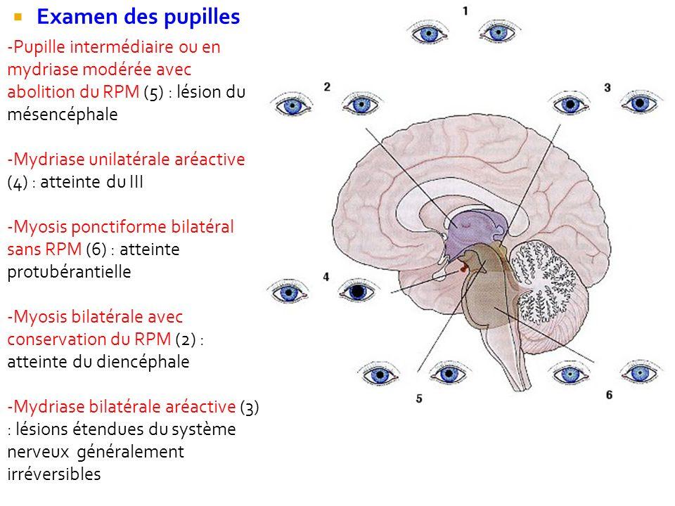 Examen des pupilles -Pupille intermédiaire ou en mydriase modérée avec abolition du RPM (5) : lésion du mésencéphale -Mydriase unilatérale aréactive (