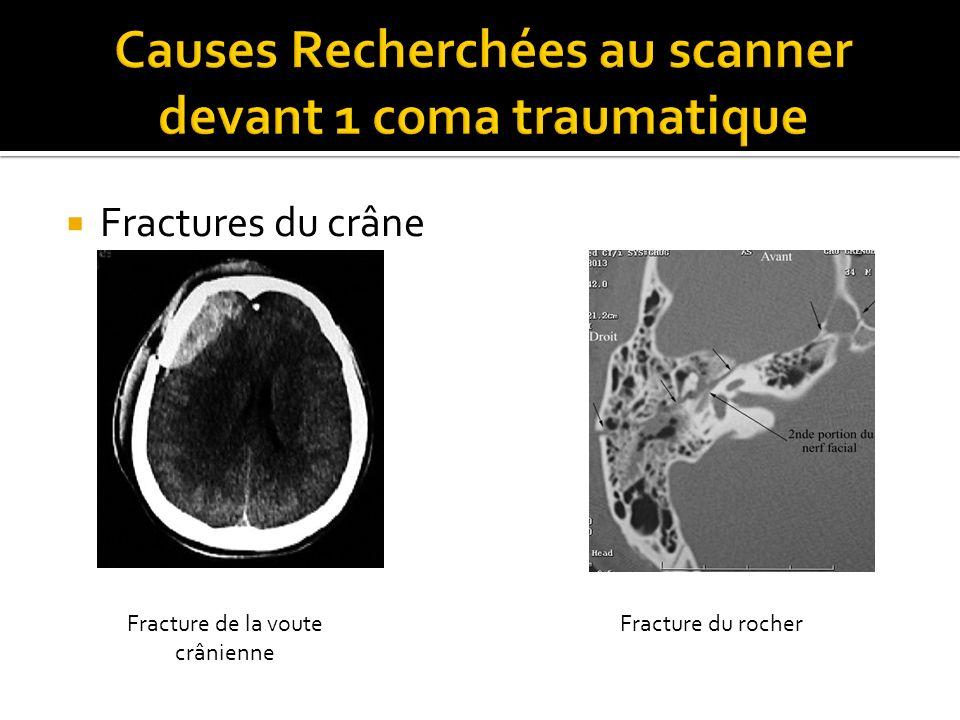Fractures du crâne Fracture de la voute crânienne Fracture du rocher