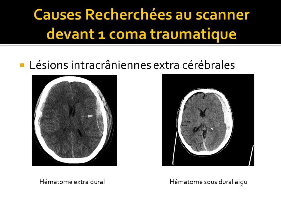 Lésions intracrâniennes extra cérébrales Hématome extra duralHématome sous dural aigu
