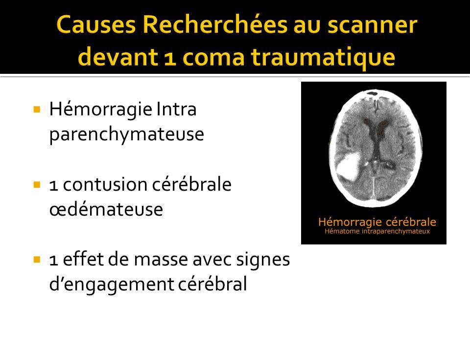 Hémorragie Intra parenchymateuse 1 contusion cérébrale œdémateuse 1 effet de masse avec signes dengagement cérébral